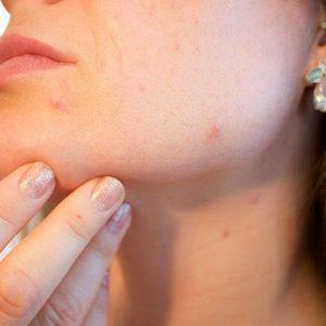 Come curarsi l'acne a 40 anni