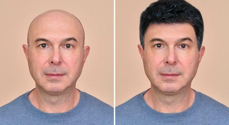 Patch per capelli vantaggi e svantaggi
